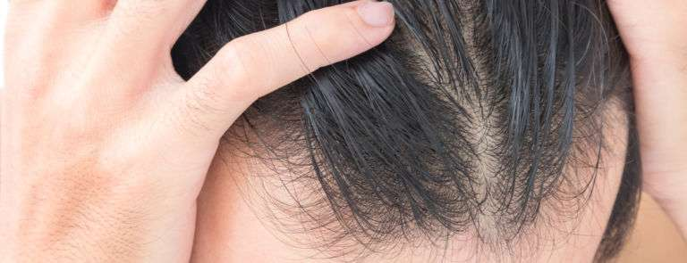 man with thinning hair