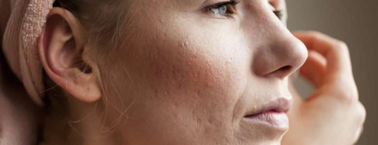 What causes acne scarring