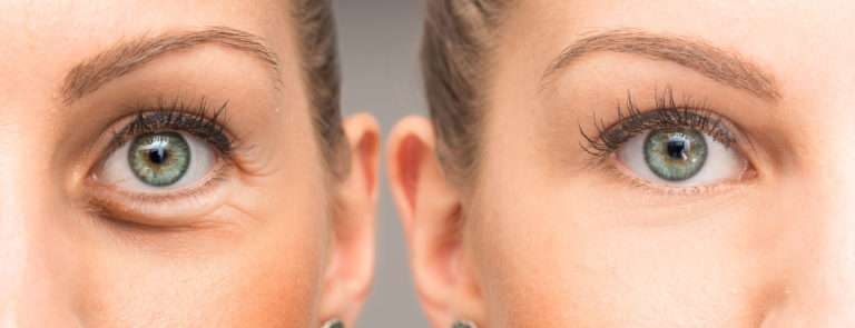 how to reduce the appearance of puffy eyes